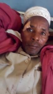 image blessés Mali Yembering