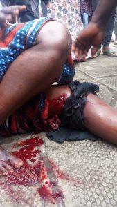 Marche de l'opposition femme blessée par balle